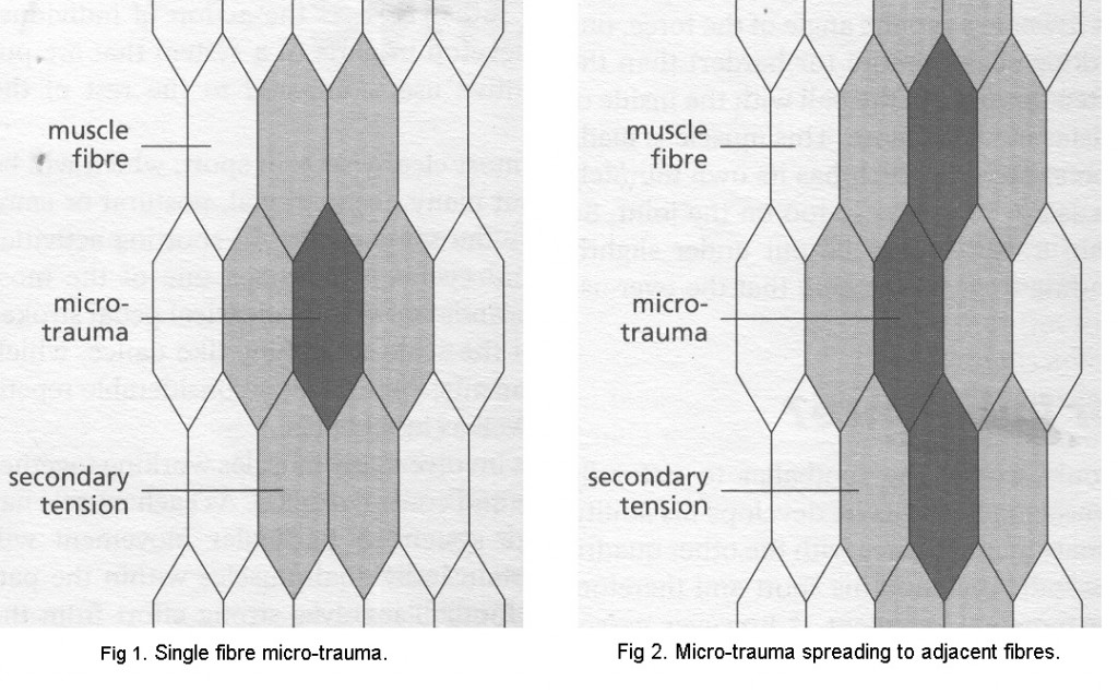 Sports Massage - Micro trauma