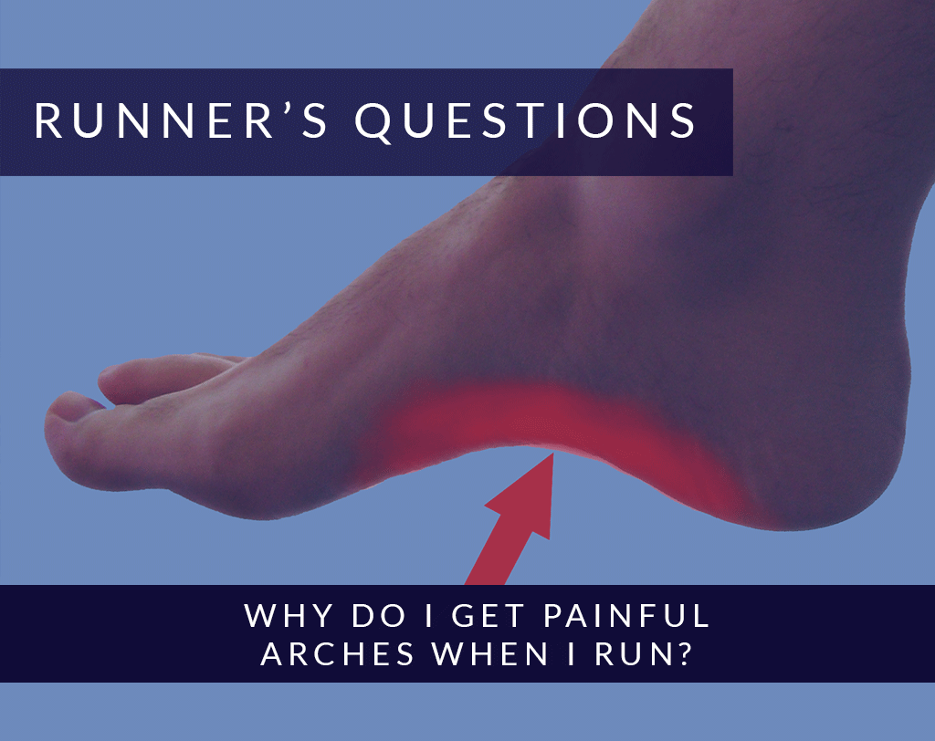 Why do I get painful arches when I run? | Alexandra Sports