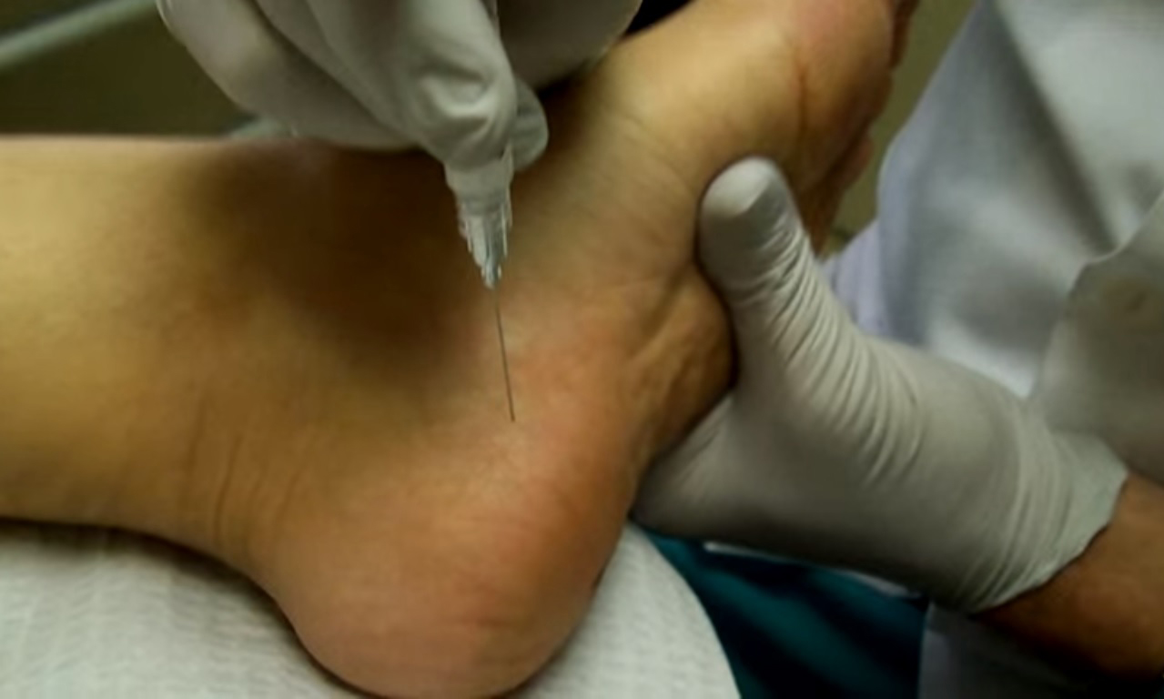 Injection for Heel Pain
